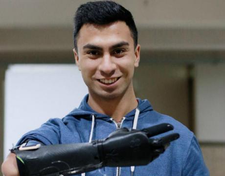 Estudiantes de la USACH diseñaron y fabricaron modernas prótesis ortopédicas